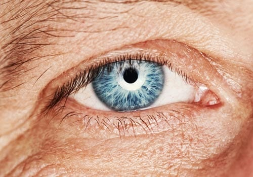 blepharoplasty eyelid lift