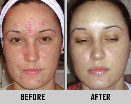 GLYCOLIC MICRO TREATMENT