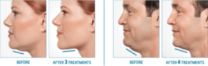 Fillers and Kybella
