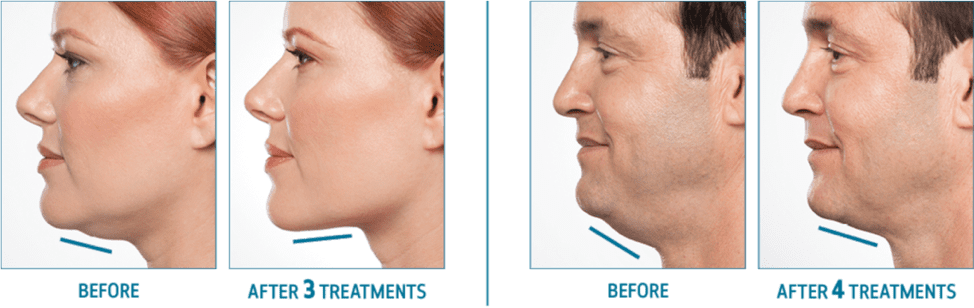 Juvederm Cosmetic Fillers | Florida Eye
